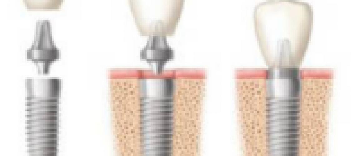 Dental implants sydney-593c7f4f